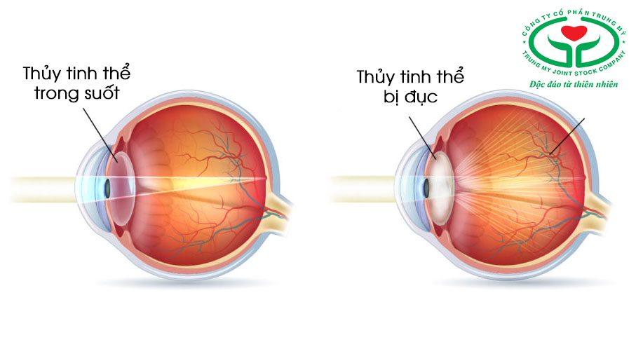 Đục thủy tinh thể là nguyên nhân gây mù lòa hàng đầu hiện nay